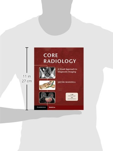 Core Radiology: A Visual Approach to Diagnostic Imaging by Cambridge University Press