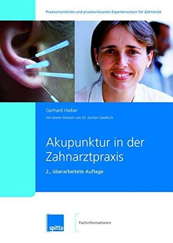 Akupunktur in der Zahnarztpraxis