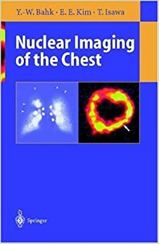 Book Nuclear Imaging of the Chest by Yong-Whee Bahk (1998-01-15)