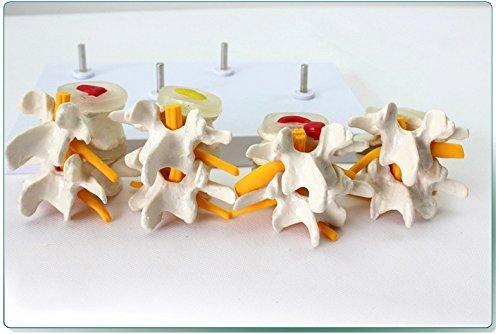 Dental Power Vertebrae Combination Pathological product image