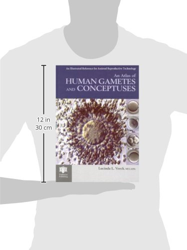 An Atlas of Human Gametes and Conceptuses: An Illustrated Reference for Assisted Reproductive Technology (The Encyclopedia of Visual Medicine Series)