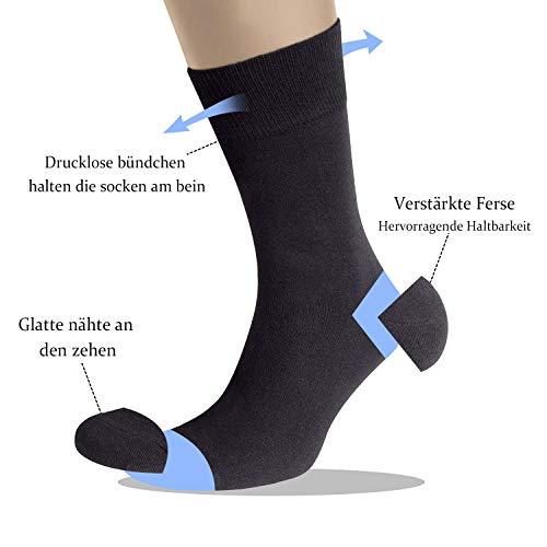 Socken abdrücke den von beinen an Sockenabdrücke =