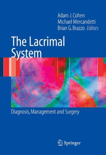 - The Lacrimal System: Diagnosis, Management and Surgery