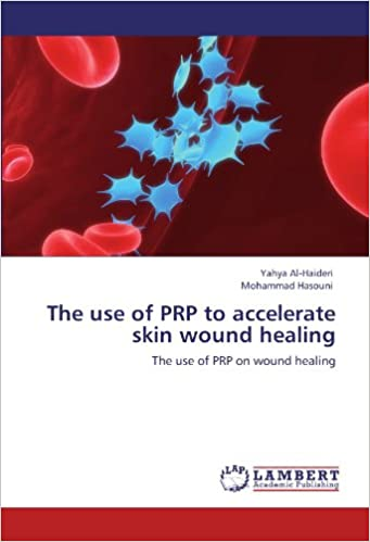The use of PRP to accelerate skin wound healing: The use of