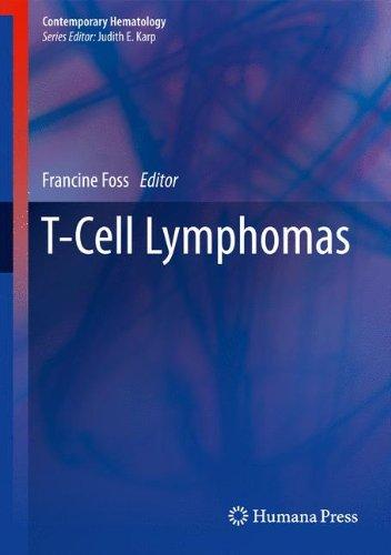 T Cell Lymphomas  Contemporary Hematology