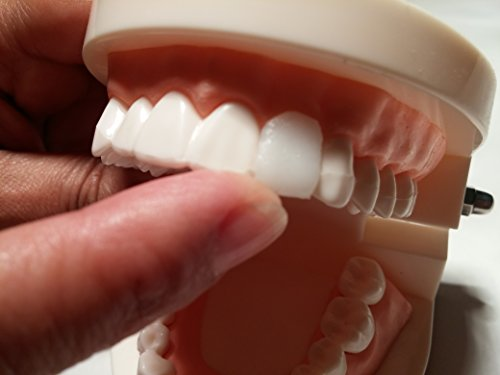 Amazing Temporary Missing Tooth Kit Complete Temp Dental Replacement Tooth Repair Kit Temp Makeover Now with 25% More by Amazing Temporary Tooth (Image #5)