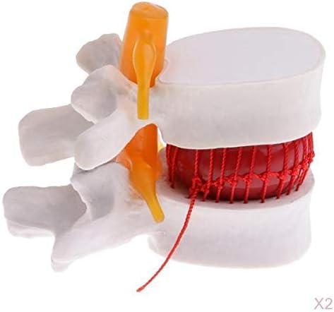 生物学 医学教育ツール 学校教材 脊椎腰椎椎間板突出構造 人間椎骨モデル