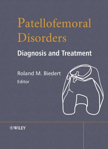 Patellofemoral Disorders: Diagnosis and Treatment Pdf