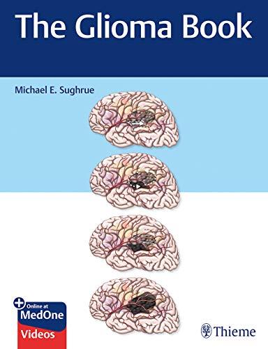 The Glioma Book 1st Edition