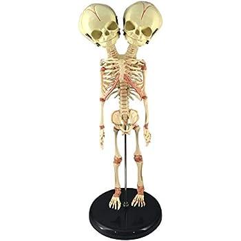 Asylum Zone Deluxe Siamese Twin Conjoined Fetus Skeleton