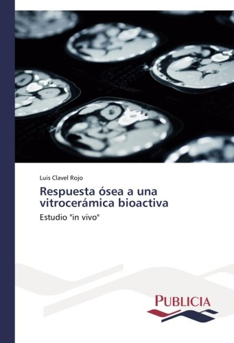 Respuesta ósea a una vitrocerámica bioactiva: Amazon.es ...