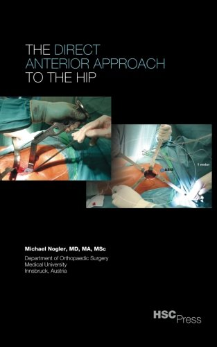 The Direct Anterior Approach to the Hip