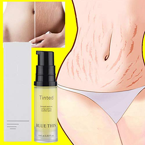 Wffo Removal Acne Scar Stretch Marks Cream Fat Scar Striae Gravidarum Treatment -No Alcohol, Mercury-Free, No Chemical Fragrances Added, Safe With No Side Effects 6ML.(Yellow) ()