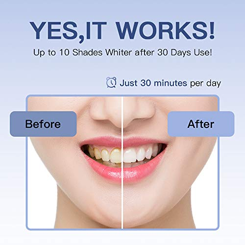 SENSOLOGY Teeth Whitening Kit with Led Light, 16 powerful Teeth Whitener, 35% Carbamide Peroxide Tooth Whitener, (4) 3ml Gel Syringes, Mouth Tray, (5) Whitening Stripes-Built in 7 Types Timer