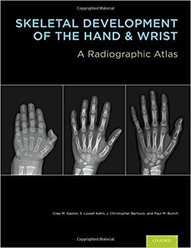 Skeletal Development of the Hand and Wrist: A Radiographic