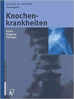 Descargar Torrents En Español Knochenkrankheiten: Klinik Diagnose Therapie PDF Gratis