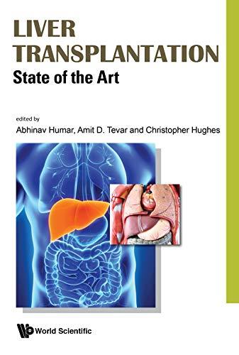 Liver Transplantation: State of the Art (Gastroenterology)