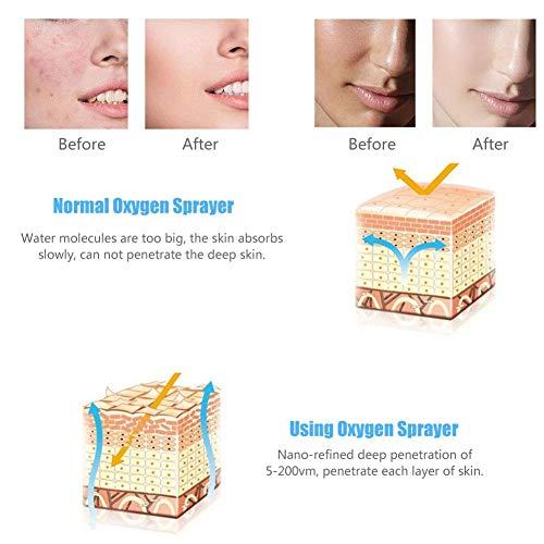 Oxygen Injection Machine Oxygen Spray Water Injection Hydrate Jet Skin Rejuvenation Beauty Machine(White) by Brrnoo (Image #3)