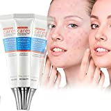 Best Acne Creams - Acne Removal Cream,Acne Treatment Gel,Acne Gel Essence,Acne Cleaning Review