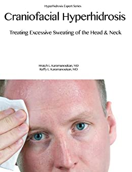 Excessive facial sweating treatment