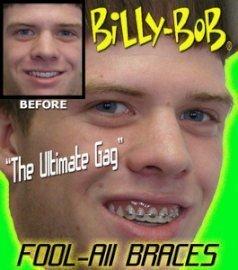 Billy Bob Braces Teeth Ugly Betty Novelty April Fools Gag Joke by Billy-Bob