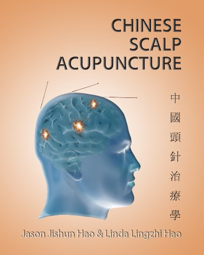 Free Chinese Scalp Acupuncture