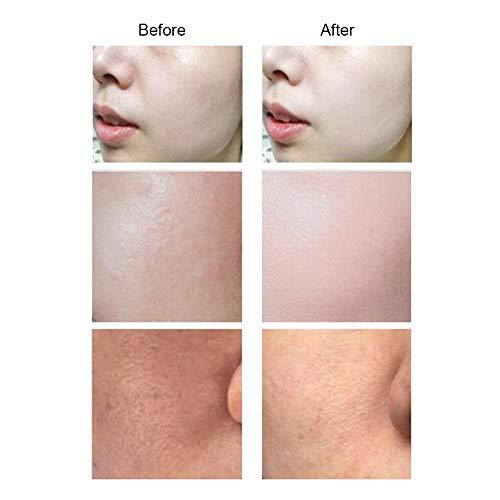 IXAER Wrinkle Removal Skin Tightening Machine Facial Whitening Moisturizing Therapy Gun Beauty Machine