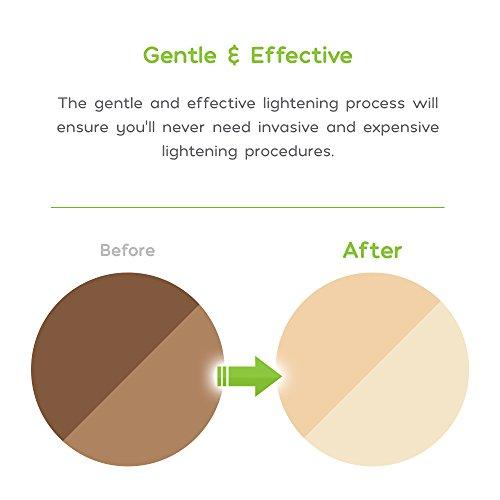 AMAIRA INTIMATE LIGHTENING SERUM BLEACHING CREAM FOR PRIVATE AREAS - SKIN BLEACH WHITENING SENSITIVE SPOTS FOR WOMEN - GENTLE KOJIC ACID DARK INNER THIGH & PRIVATES BRIGHTENING (1.7OZ)