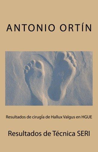 Resultados de cirugIa de Hallux Valgus en HGUE: Resultados de Tecnica SERI (Spanish Edition) [Dr Antonio Ortin] (Tapa Blanda)