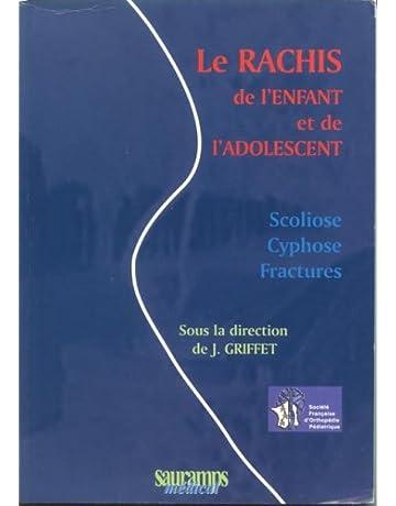 Amazon ca: Scoliose - Pathologies - Maladies: Livres