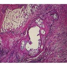 Microscope Slides :: Human Adenocarcinoma of Lung Microscope Slide, sec by Carolina Biological Supply Company