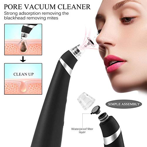 (Deep Blackhead Removal NewLifeStore Electronic Rechargeable Vacuum Extraction Facial Pore Cleanser Blackhead Acne Comedone Suction Remover Tool Black)