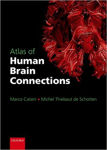 Amazon atlas of human brain connections marco catani amazon atlas of human brain connections marco catani michel thiebaut de schotten livres fandeluxe Gallery