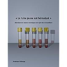 « Le tube jaune est hémolysé »: Abordant les raisons techniques du rejet des échantillons. (French Edition)