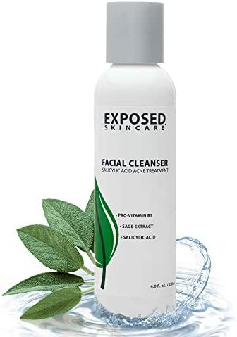 Exposed Skin Care Acne Facial Cleanser – Gentle Natural Extracts and Salicylic Acid .5% - Acne Breakout Eliminating Face Wash for Teens & Adults, 4 fl oz