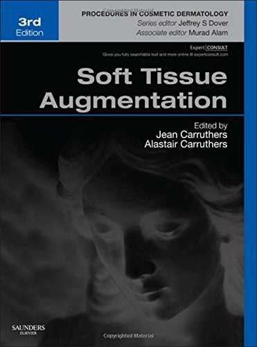 Soft Tissue Augmentation: Procedures in Cosmetic Dermatology Series (Expert Consult - Online and Print), 3e