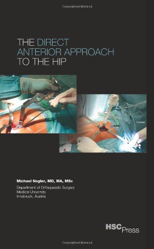 Read Online The Direct Anterior Approach to the Hip pdf