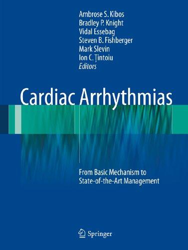Cardiac Arrhythmias Pdf