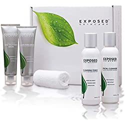 Exposed Skin Care Basic 5-Piece Teen and Adult Complete Acne Treatment System (60 Day) - Prevents and Heals Breakouts with Benzoyl Peroxide, Salicylic Acid and Healthy Natural Extracts.