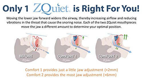 ZQuiet Anti-Snoring Treatment, 2-Size Comfort System Starter Kit, Set of 2 Sleep Aid Mouthpieces Plus Travel Case by ZQuiet (Image #5)