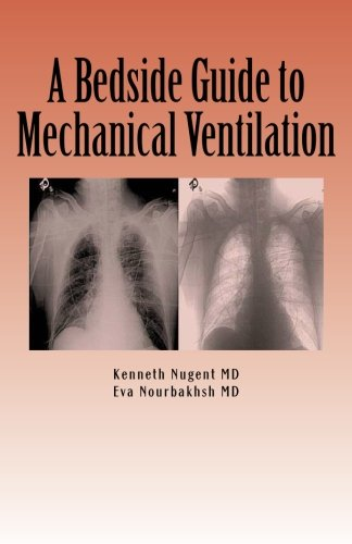 a-bedside-guide-to-mechanical-ventilation