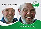 Temptooth #1 Seller Trusted Patented Temporary