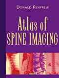 img - for Atlas of Spine Imaging, 1e book / textbook / text book