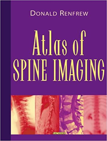 Atlas of Spine Imaging, 1e