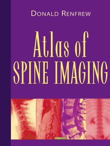Download Atlas of Spine Imaging pdf epub