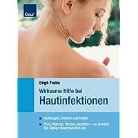 Wirksame Hilfe bei Hautinfektionen: Vorbeugen, lindern, heilen Pilze, Warzen, Herpes, Aphten - so werden Sie lästige Beschwerden los