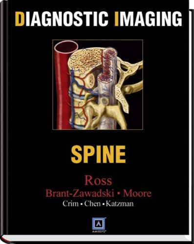 Diagnostic Imaging: Spine, 1e