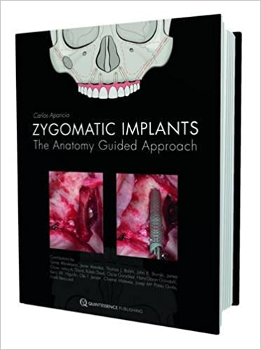 Zygomatic Implants: The Anatomy-Guided Approach: 9781850972259 ...
