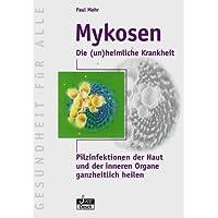 Mykosen: Die (un) heimliche Krankheit
