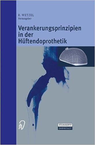 Verankerungsprinzipien in Der Ha1/4ftendoprothetik